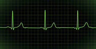 life is like a heart beat