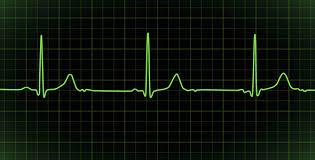 life is like a heart beat